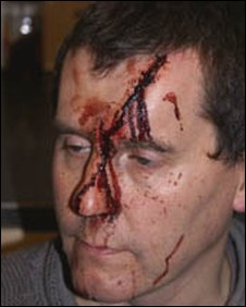 Hit in the head with a hammer by UAF thugs, but no outcry by Britains corrupt press.